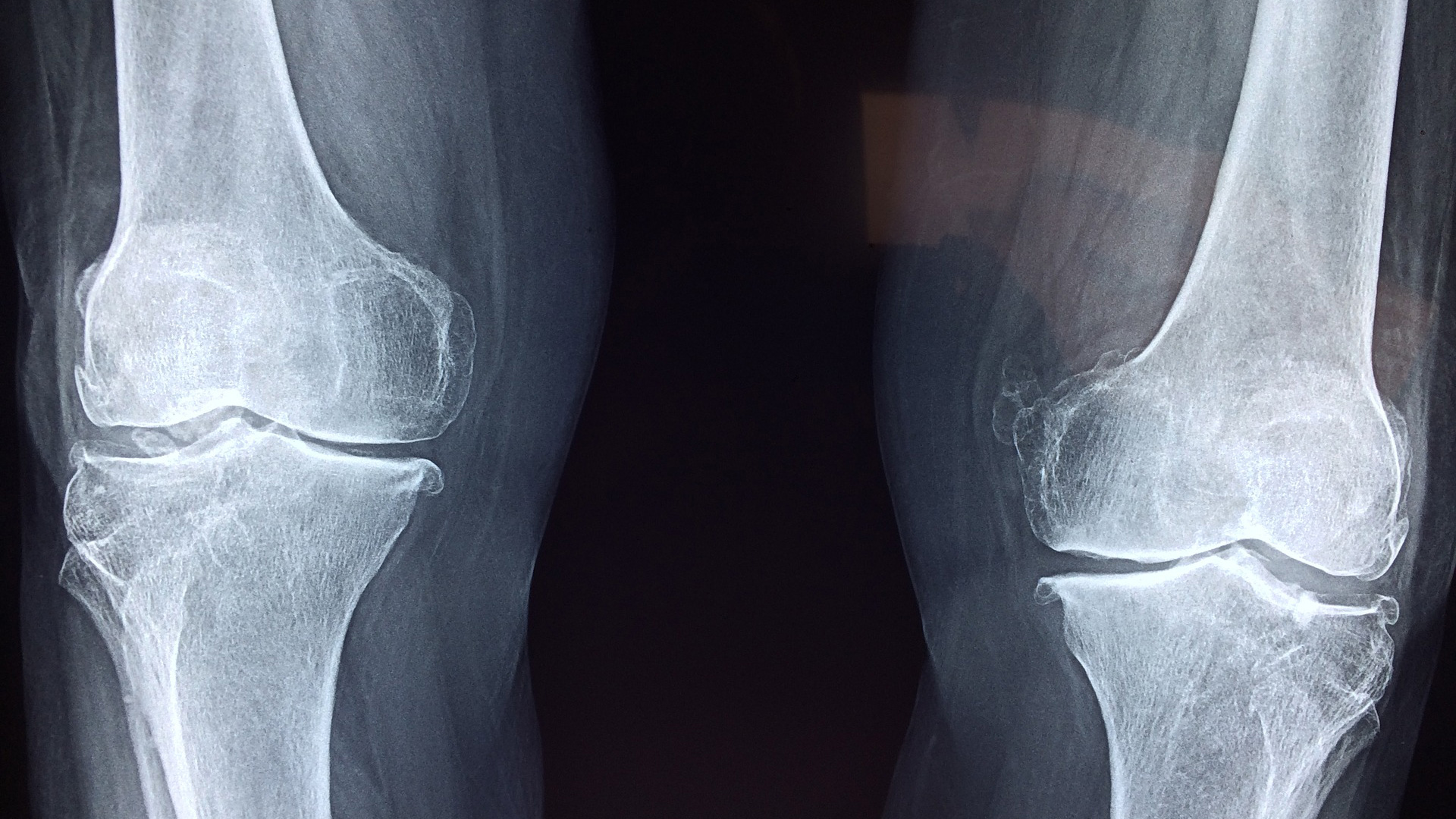 traumatologia-avanzada-rodilla