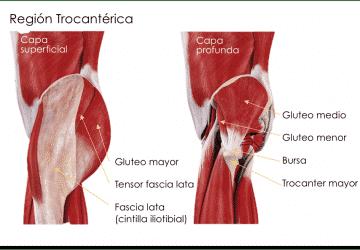 tendinitis gluteo medio estiramientos