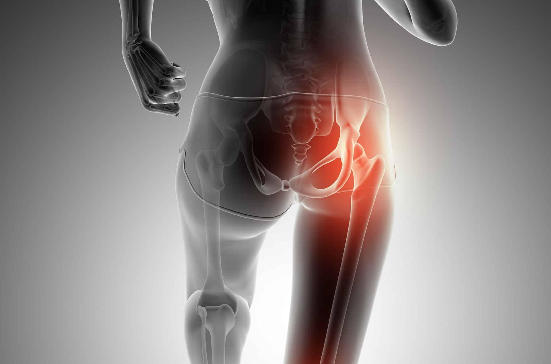 síntomas de hernia flexora de cadera
