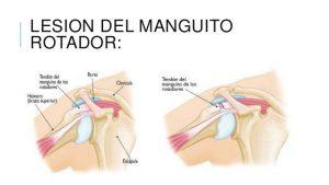 nuevo concepto 76859 30c80 Las lesiones de hombro más comunes y cómo tratarlas - CAMDE