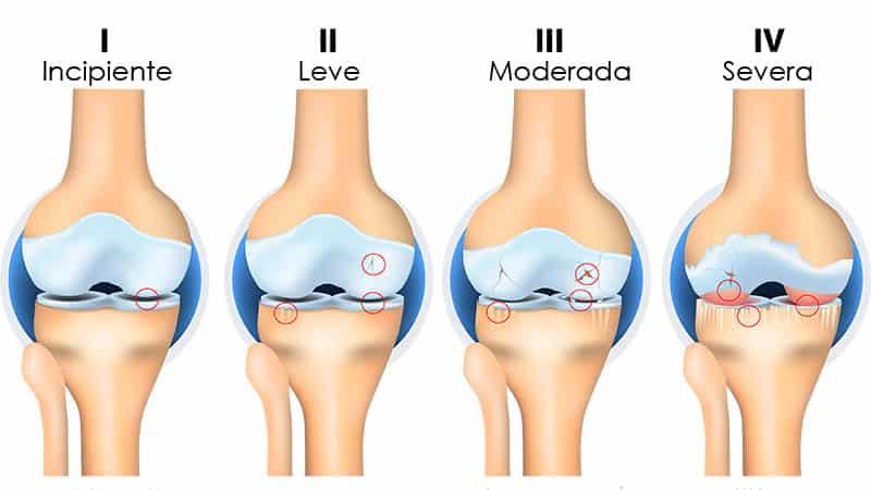 Usos de células madre en rodilla