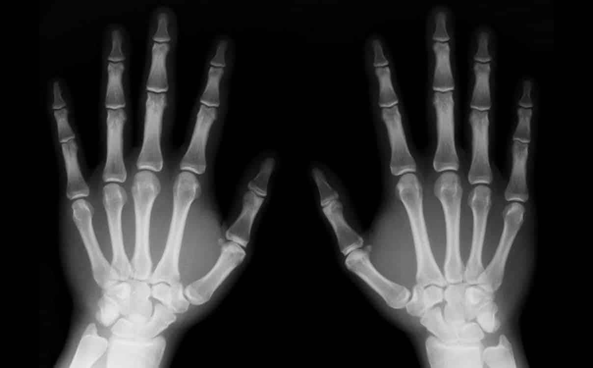 Lesiones óseas: tipos, causas y tratamientos
