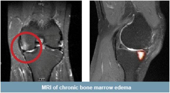 La edema óseo rodilla artroscopia en tras