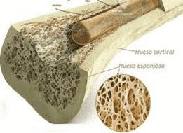 edema oseo tratamiento
