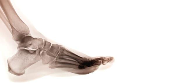 Pautas para prevenir la fractura por estrés