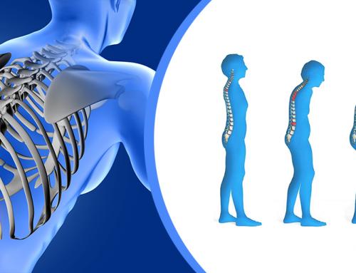 Huesos frágiles con osteoporosis