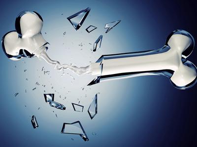 Huesos de cristal: una enfermedad para toda la vida
