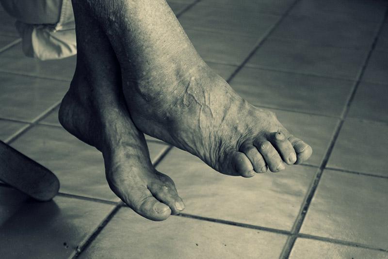 La gota: una artritis inflamatoria muy dolorosa