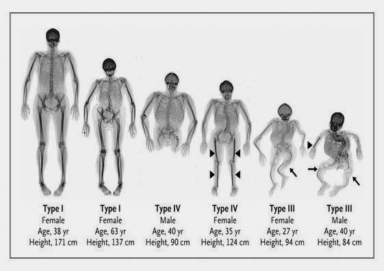 tipos de osteosgénesis imperfecta