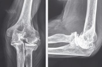 síntomas artrosis de codo
