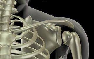 Fractura de clavícula: causas y tipos de tratamiento