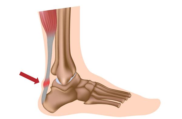 ¿Advil causa inflamación del tobillo?