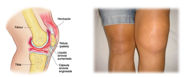 causas de la Sinovitis