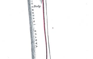 Fractura de fémur: causas y tratamiento