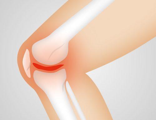 Prepárate para una Artroplastia efectiva
