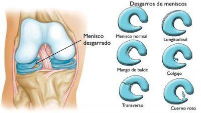 trasplante de menisco