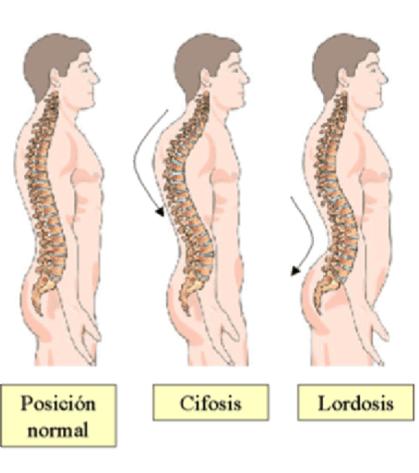 tipos de nudos en la espalda