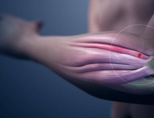 Conoce los tres factores de riesgo de la tendinitis crónica