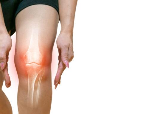 Conoce las causas del dolor de rodilla
