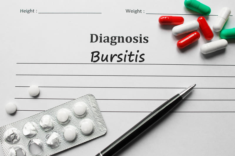 bursitis causa de la cadera en resorte
